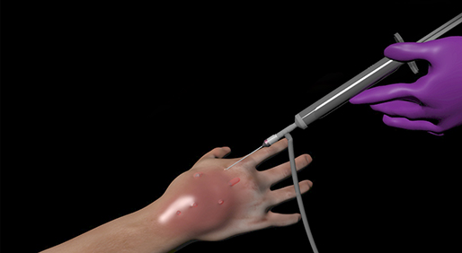 Using 3D Animation to Prevent Chemotherapy Mistakes