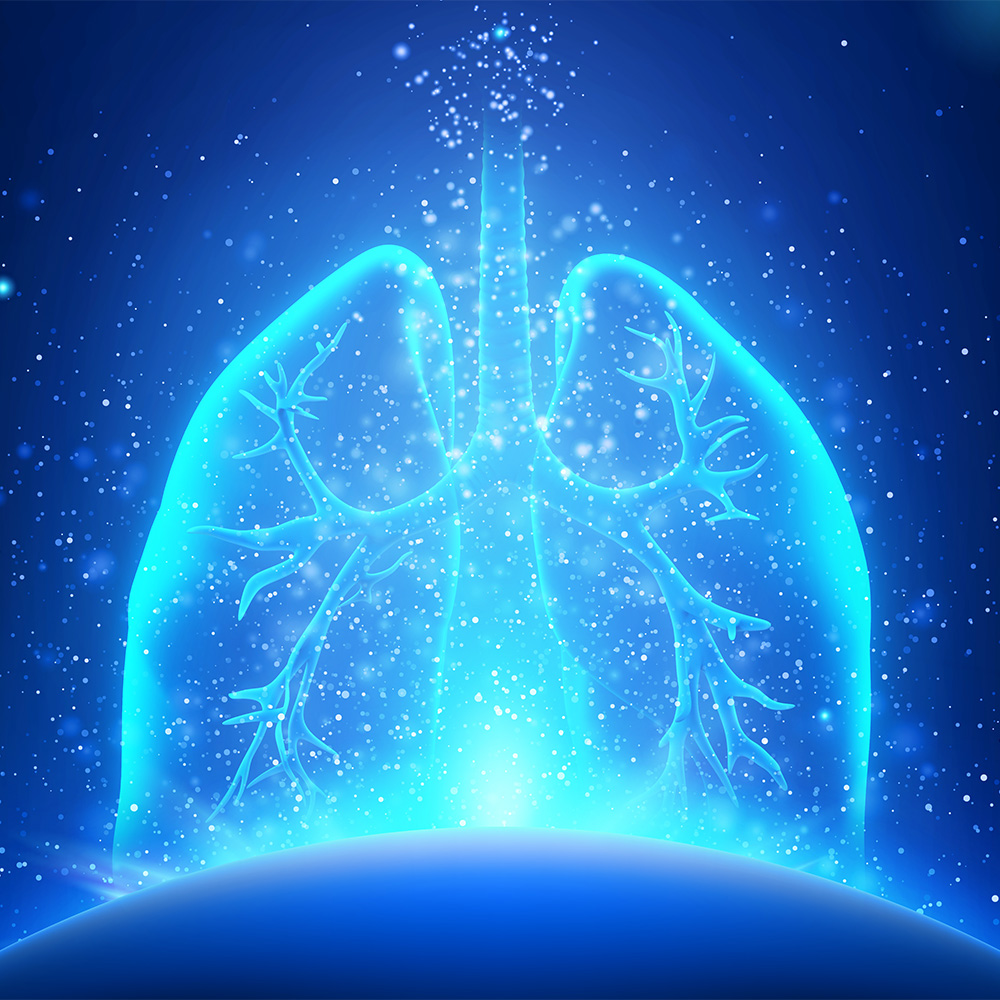 Finding New Targets for Small Cell Lung Cancer