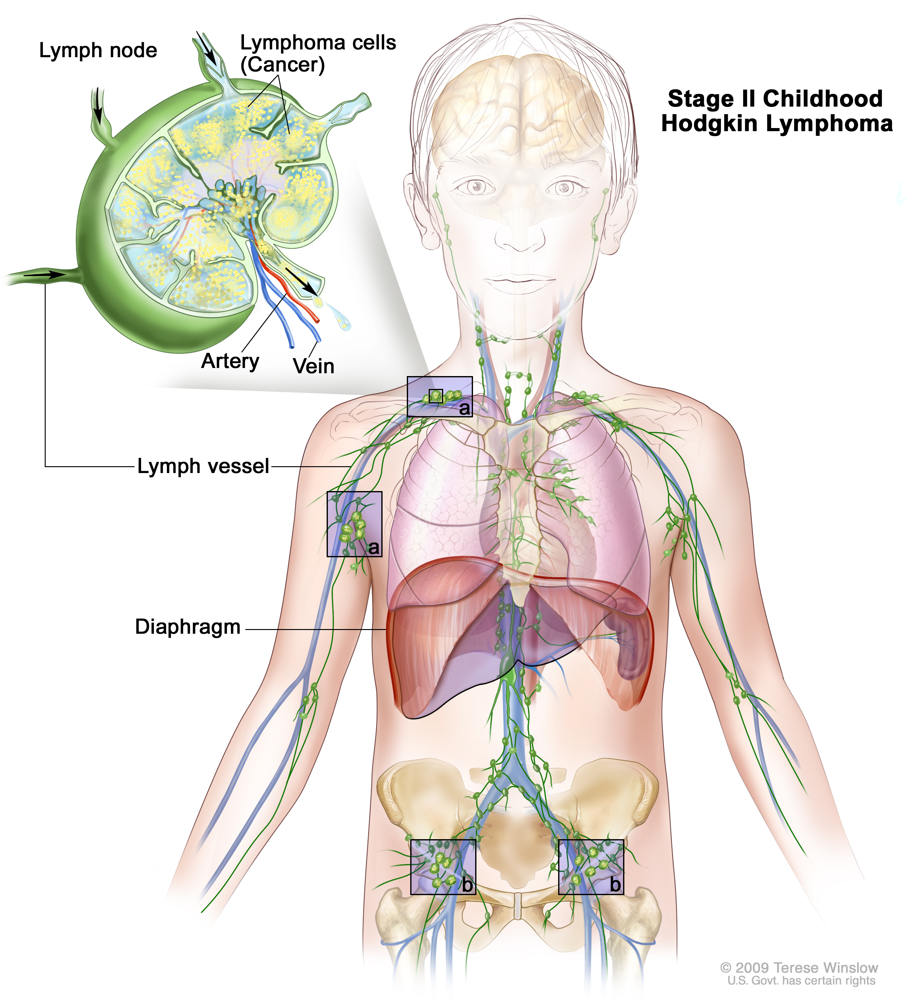 Stage II childhood Hodgkin lymphoma; drawing shows cancer in lymph node groups above and below the diaphragm. An inset shows a lymph node with a lymph vessel, an artery, and a vein. Lymphoma cells containing cancer are shown in the lymph node.