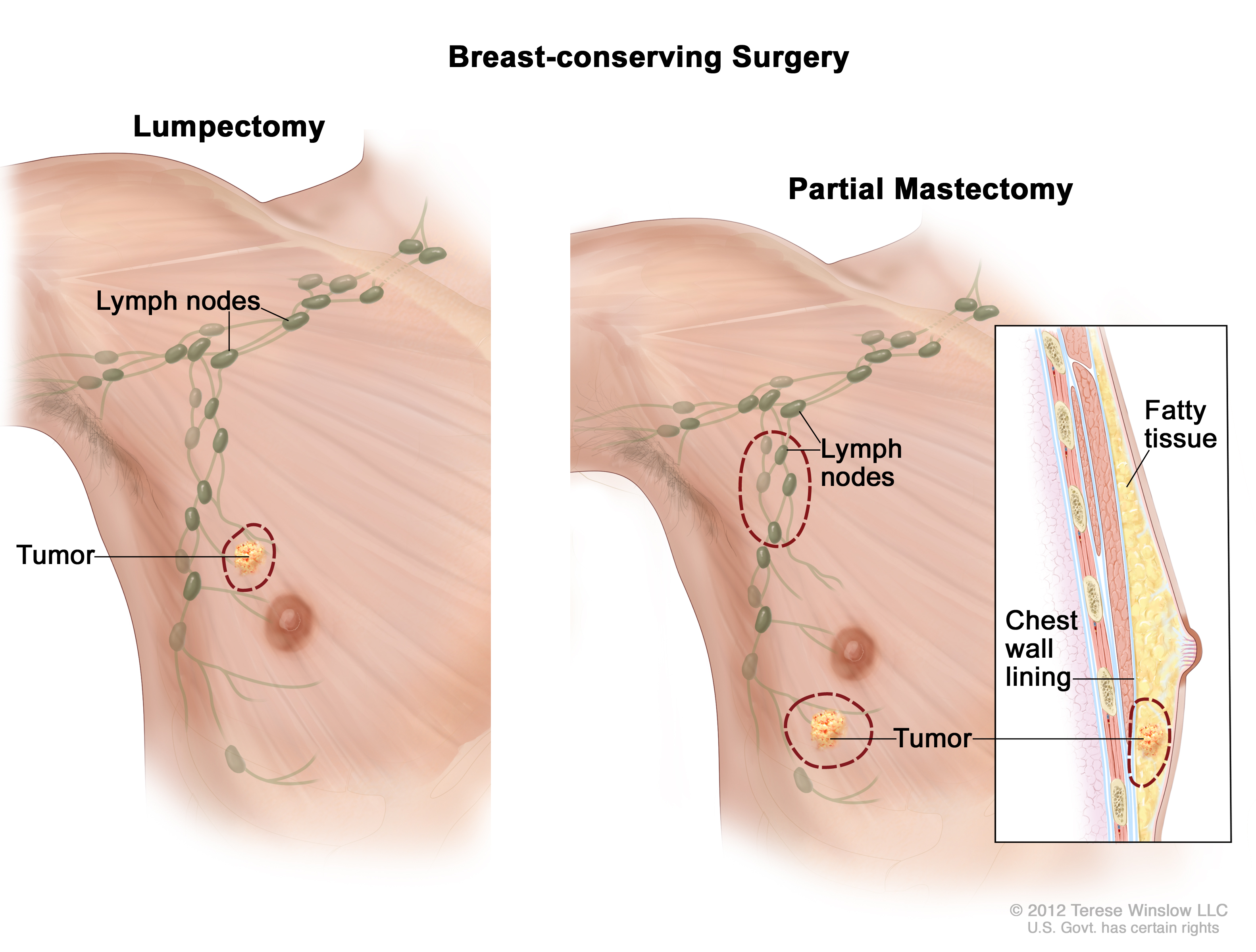 Something is. breast cyst removal with