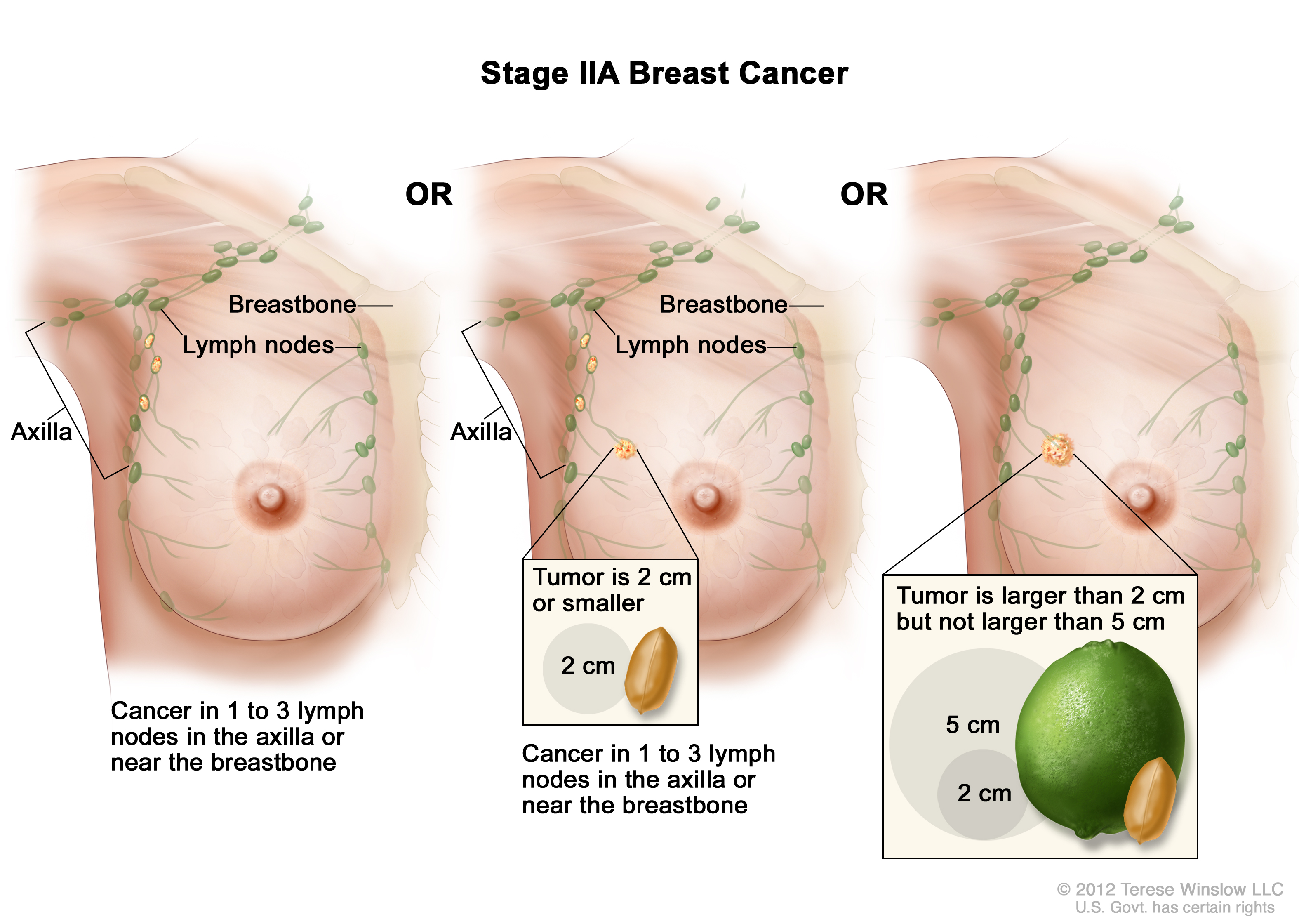 Breast Cancer Treatment (PDQ®) | Cure Today